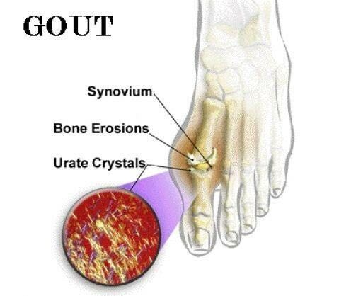 Tips to Cure Gout